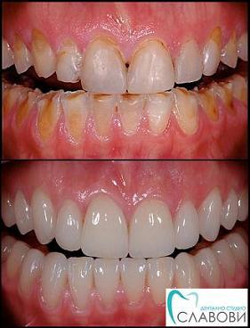 изтриване на зъбите - абразио - Дентално Студио Славови